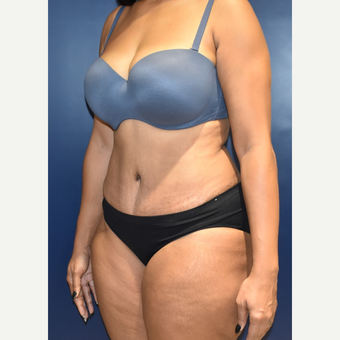 25-34 year old woman treated with Tummy Tuck after 3844748