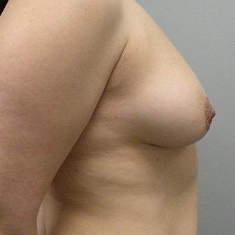 35-44 year old woman treated with Breast Augmentation 2959446