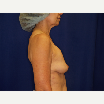 45-54 year old woman treated with Breast Implant Revision before 3061274