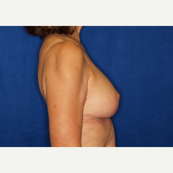 45-54 year old woman treated with Breast Implant Revision after 3061274