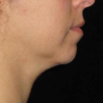 45 year old woman treated with Kybella before 3782590