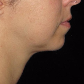 45 year old woman treated with Kybella after 3782590
