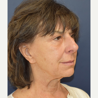 65-74 year old woman treated with Lower Face Lift before 3213982