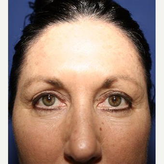 45-54 year old woman treated with Chemical Peel before 3093411