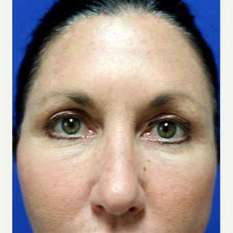 45-54 year old woman treated with Chemical Peel after 3093411
