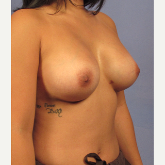25-34 year old woman treated with Breast Augmentation after 3321588