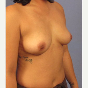 25-34 year old woman treated with Breast Augmentation before 3321588