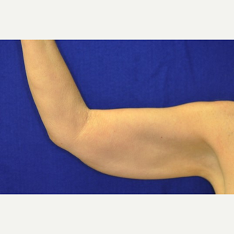 35-44 year old woman treated with Arm Lift before 3844235