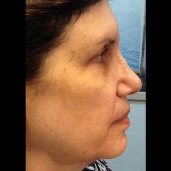 65 year-old woman treated for laxity with Pelleve before 1527493