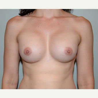35-44 year old woman treated with Mentor Breast Implants after 3294895