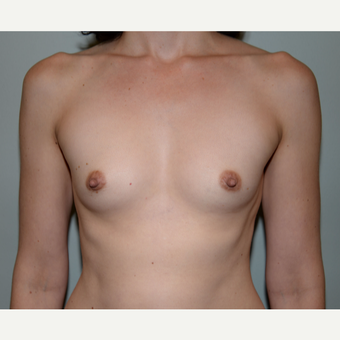 35-44 year old woman treated with Mentor Breast Implants before 3294895