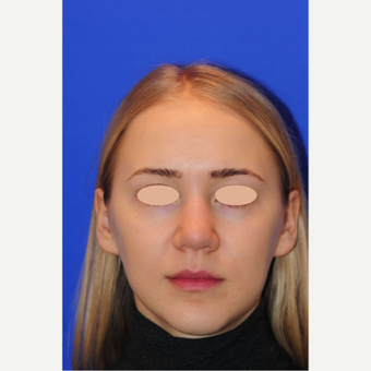 22 year old woman treated with Rhinoplasty before 3163345