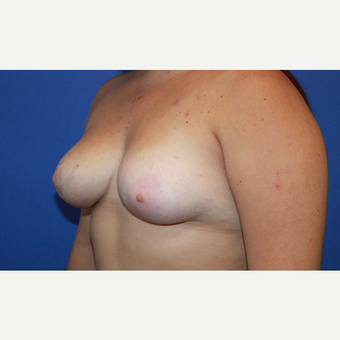 18-24 year old woman treated with Unilateral Breast Reduction after 3669640