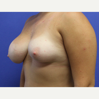 18-24 year old woman treated with Unilateral Breast Reduction before 3669640