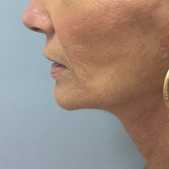 55-64 year old woman treated with Neck Lift after 1602022