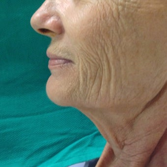 55-64 year old woman treated with Neck Lift before 1602022