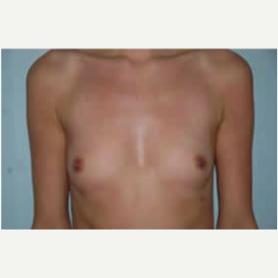 Breast Augmentation before 3058263