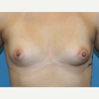 29 year old woman treated with Breast Augmentation before 3486748