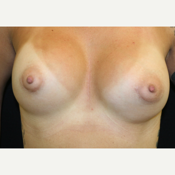 29 year old woman treated with Breast Augmentation after 3486748