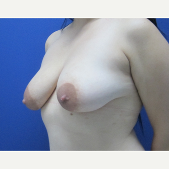 25-34 year old woman treated with Breast Augmentation before 3695914