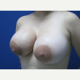 25-34 year old woman treated with Breast Augmentation after 3695914