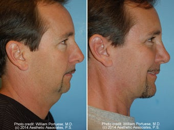 Neck Liposuction before 1389496