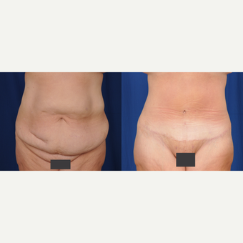35-44 year old woman treated with Tummy Tuck before 3536499