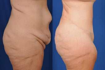 35-44 year old woman treated with Tummy Tuck after 3536499