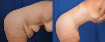 35-44 year old woman treated with Tummy Tuck 3536499