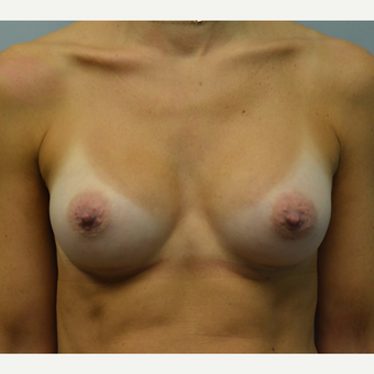 35-44 year old woman treated with Breast Augmentation after 3098875