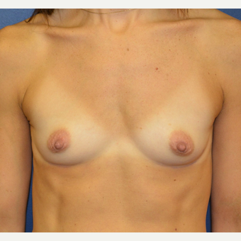 35-44 year old woman treated with Breast Augmentation before 3098875