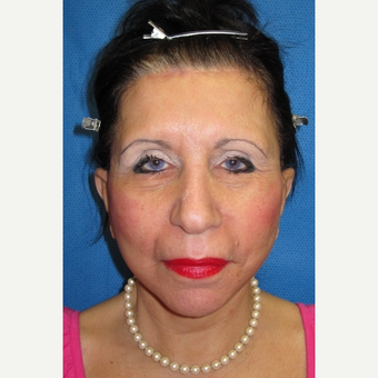 55-64 year old woman treated with Facelift after 3097508