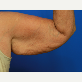 70- year old woman treated with Arm Lift before 3108400