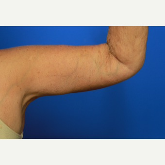 70- year old woman treated with Arm Lift after 3108400