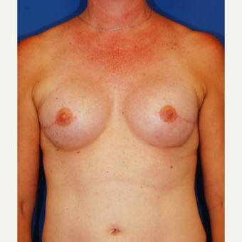 35-44 year old woman treated with Breast Reconstruction after 3619176