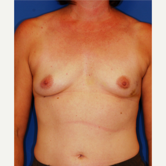 35-44 year old woman treated with Breast Reconstruction before 3619176