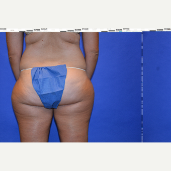 45-54 year old woman treated with Liposuction after 3580040