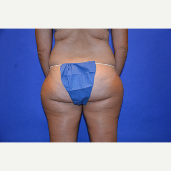 45-54 year old woman treated with Liposuction before 3580040