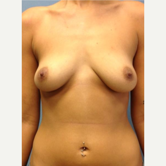 35-44 year old woman treated with Breast Augmentation before 3742582