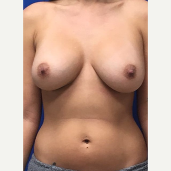 35-44 year old woman treated with Breast Augmentation after 3742582