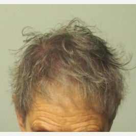 65-74 year old woman treated with Scalp MicroPigmentation SMP after 2446946