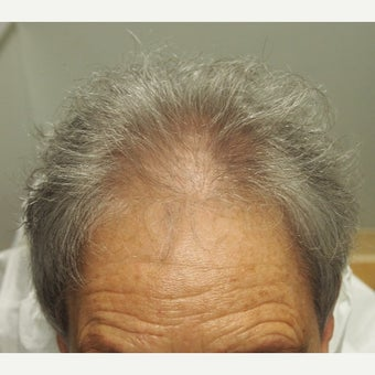 65-74 year old woman treated with Scalp MicroPigmentation SMP before 2446946