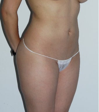 25-34 year old woman treated with Liposuction before 3586951