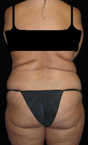 45-54 year old woman treated with Liposuction 3251644