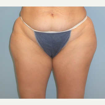 41 year old woman treated with Liposuction before 3142147