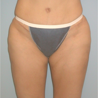 41 year old woman treated with Liposuction after 3142147