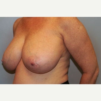 55-64 year old woman treated with Breast Reduction before 3565660