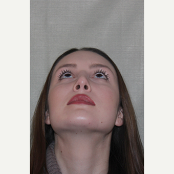 25-34 year old woman treated with Septoplasty 1543974