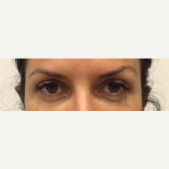 25-34 year old woman treated with Voluma before 2743261