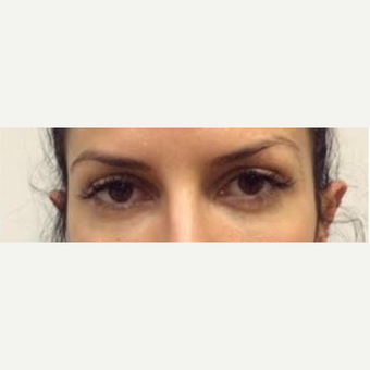 25-34 year old woman treated with Voluma after 2743261